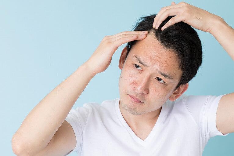 男性の薄毛治療